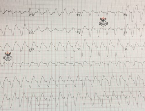 Amal Mattu's ECG Case of the Week – September 3, 2018