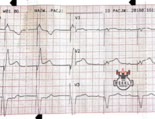 Amal Mattu's ECG Case of the Week – October 29, 2018