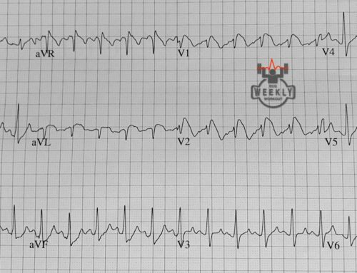 Amal Mattu's ECG Case of the Week – April 1, 2019