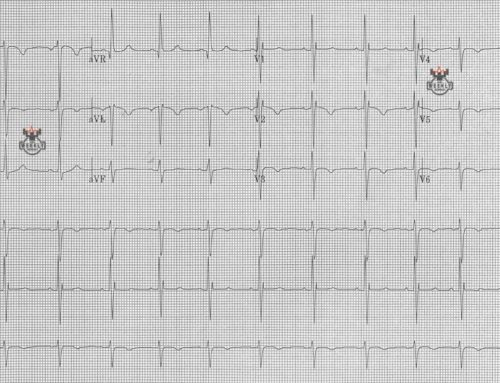 Amal Mattu's ECG Case of the Week – April 15, 2019